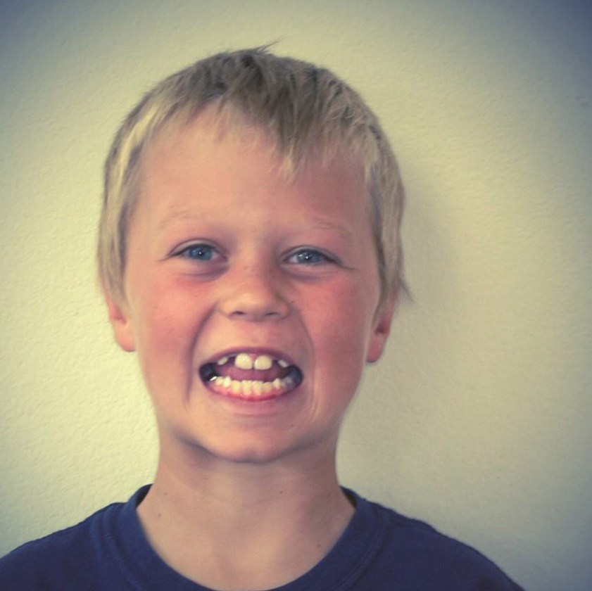 Evan Before Thatcher Orthodontics