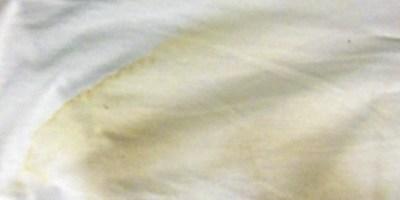 yellow stain