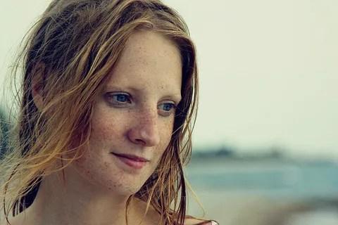 Freckles  © Oleg Gekman | Dreamstime.com