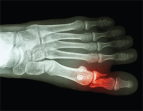 Spontaneous bone fracture is becoming well recognized following the report of 27 spontaneous metatarsal fractures by Dr. Shirish Sangle in APS patients.
