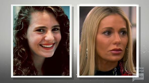 Producers shared side by side photos to show off the evolution of Dorit's nose