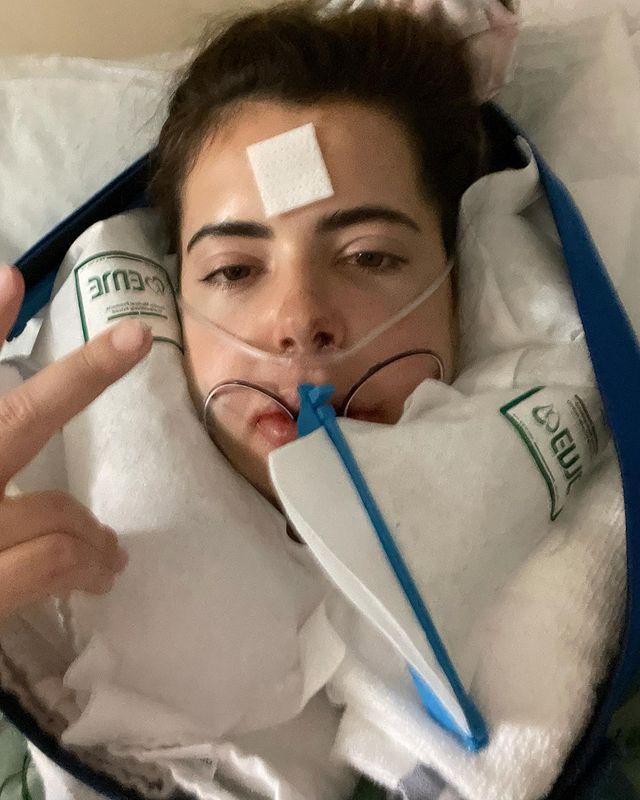 In one snap the star could be seen with ice packs around her jaw