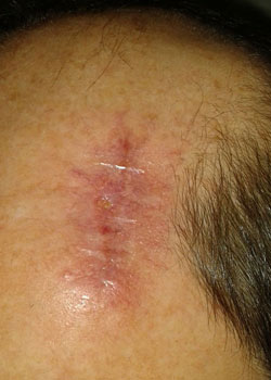 Wound dehiscence