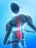 My major back injury