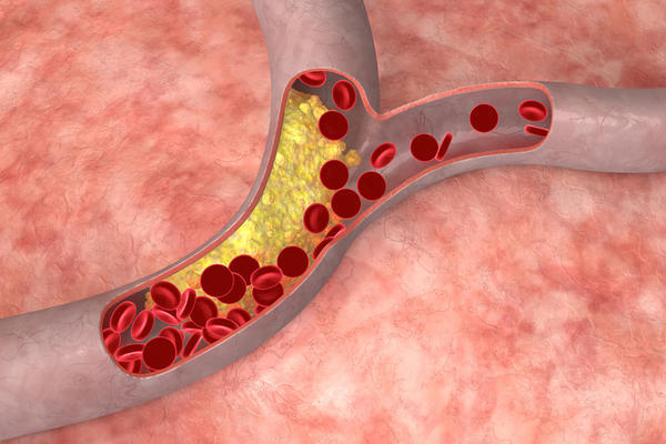 Cholesterol disorder in humans
