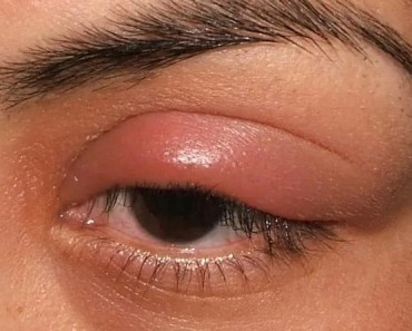 Stye-on-upper-eyelid