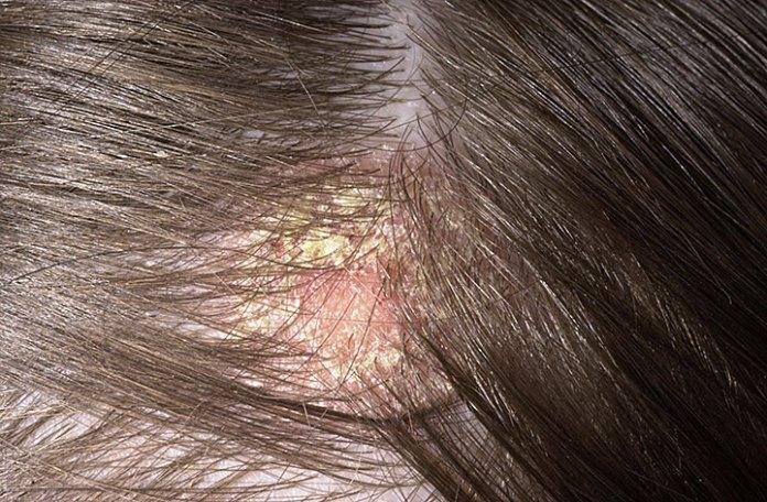 Severe-Dandruff-on-scalp