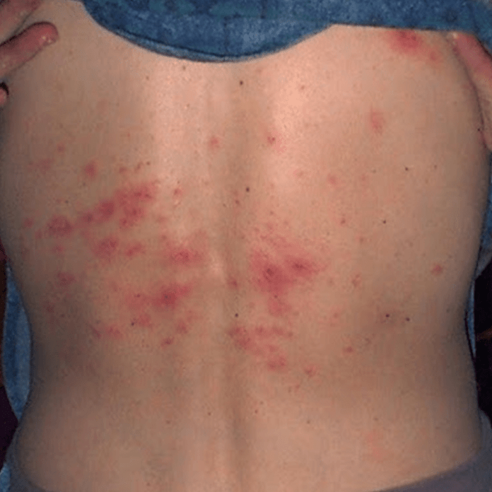 Rashes of Scabies on skin