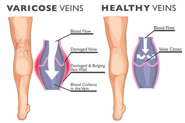 Varicose veins and healthy veins