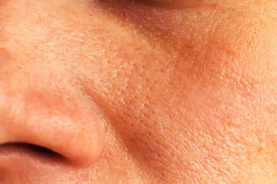 Large Skin Pores