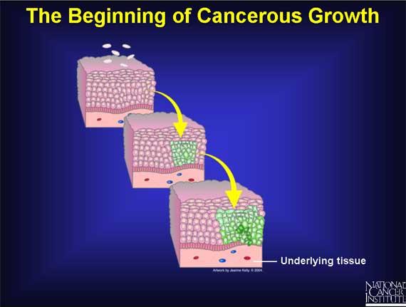 development of cancer cells