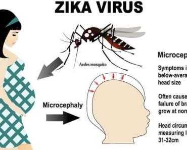 Zika virus and pregnancy