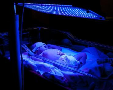 Infant undergoing Phototherapy