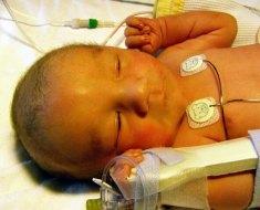 infant with neonatal jaundice