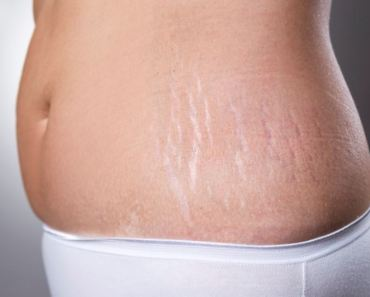 reduce stretch marks after weight loss