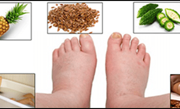 Top 10 home remedies for Water Retention (edema)
