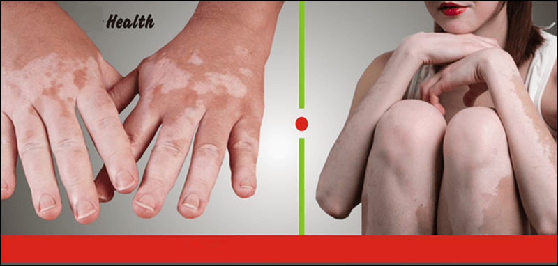 Natural Ayurvedic Herbal Remedies For Vitiligo Theayurveda