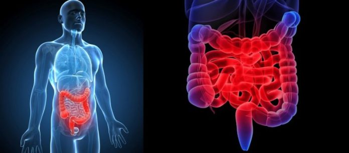 Natural Ayurvedic Herbs for Inflammatory Bowel Disease