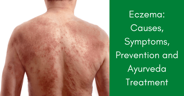Eczema Causes, Symptoms, Prevention and Ayurvedic Treatment