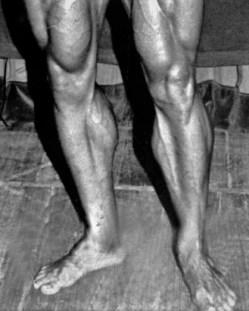 Arnold calves