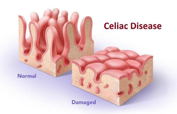 Celiac Disease and Reovirus: Normal and damaged villi of the small intestine