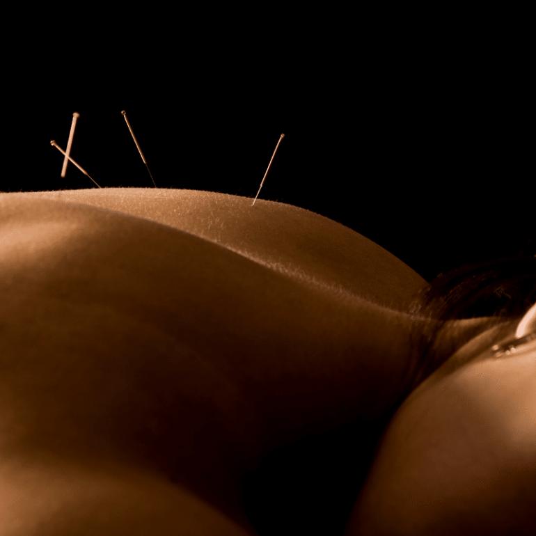 Acupuncture: A Human Pincushion