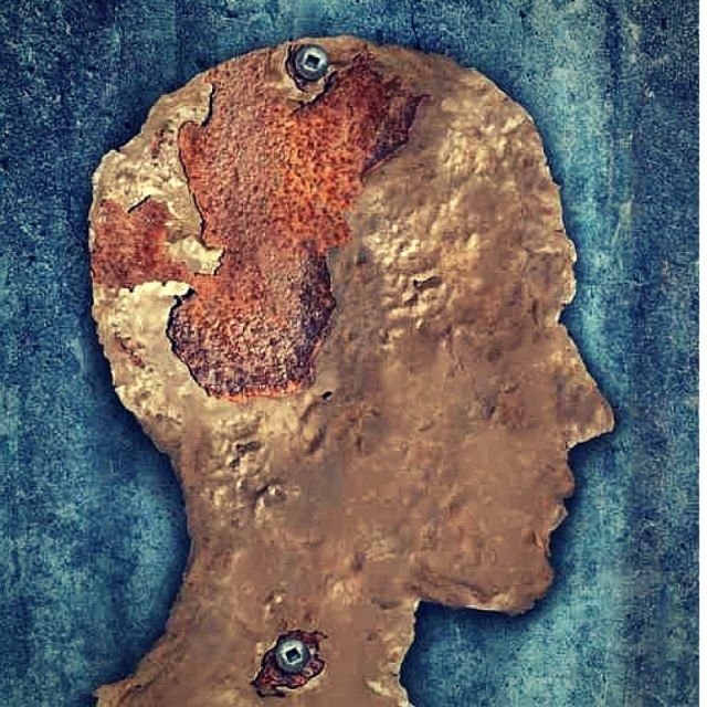 8 Things You Need To Know About Preventing Parkinson's