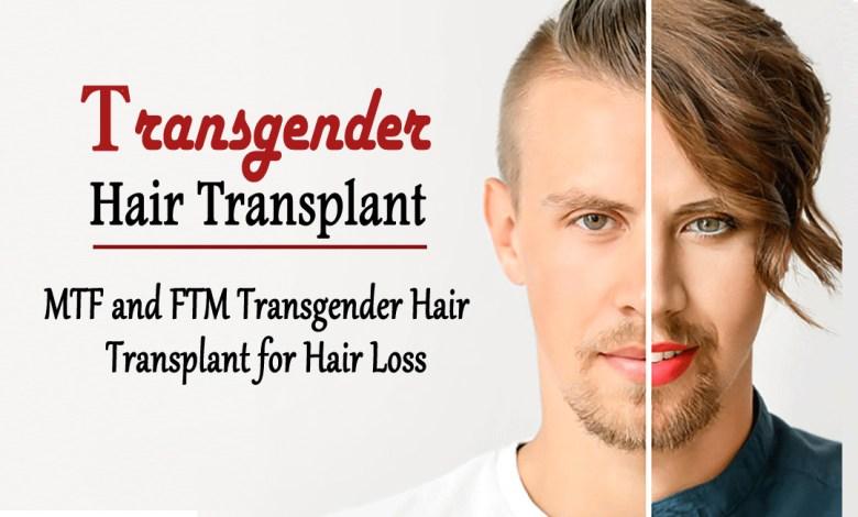 transgender hair transplant- MTF and FTM Transgender Hair Transplant for Hair Loss