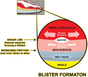 Friction blisters: prevention and treatment
