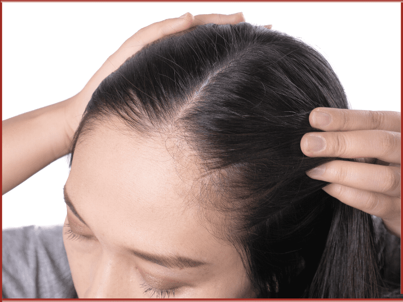 Get Instant Relief From Scalp Infections And Bald Patches With Ghee