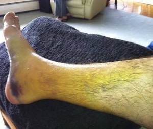 Rivett's Injury - Credit: twitter.com/MBushellRacing