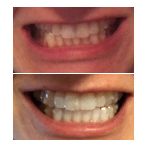 Invisalign Before and After 2021