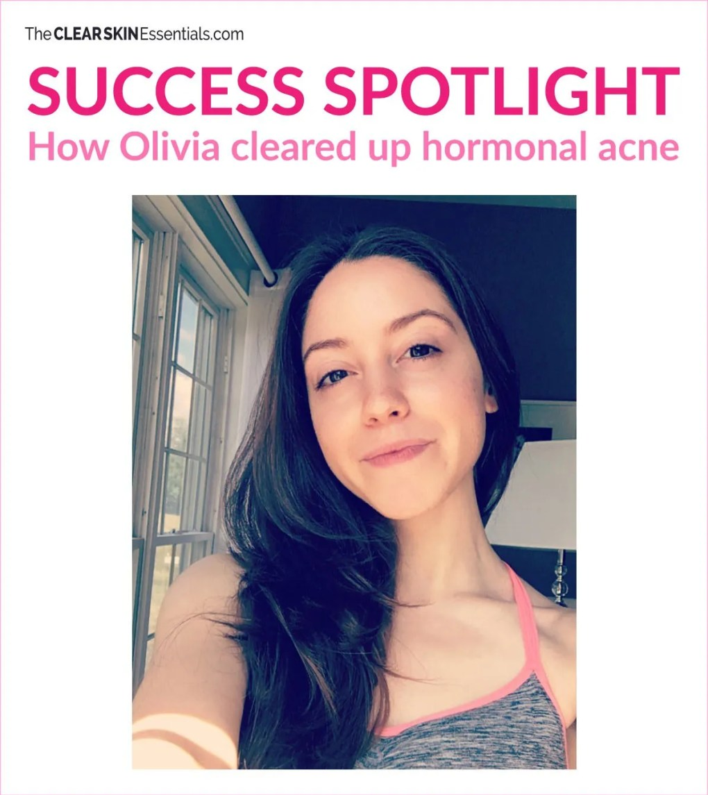 SUCCESS SPOTLIGHT - Real women's stories clearing up adult acne. Read Olivia Dufour's story how she cleared up hormonal acne naturally through changes and improvements to her diet, skincare routine, and even hair care routine! Click through to read more. | www.TheClearSkinEssentials.com