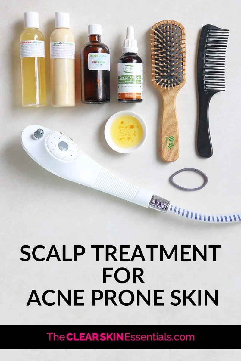 Could your hair and scalp be causing your breakouts and acne? Absolutely! In fact, if your scalp is over producing oil and sebum, chances are it's causing breakouts on your face. Here's an easy DIY scalp treatment for acne prone skin you can start doing right away. Not only will it balance out your scalp (and get rid of dry, flakey, itchy scalp), but it'll leave your hair soft and smooth! Click through for the scalp treatment recipe and video demo. | www.TheClearSkinEssentials.com