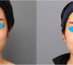 目元のアンチエイジング(マイクロCRF注入)、30代女性