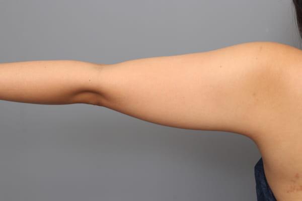 「BMI 23、20代女性」の『二の腕・肩ベイザー脂肪吸引』