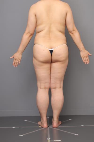 「BMI 29.2、40代女性」の『全腹&胸下&腰ベイザー脂肪吸引』