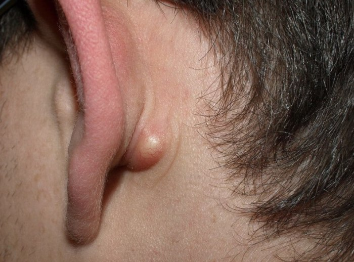 pimple near ear