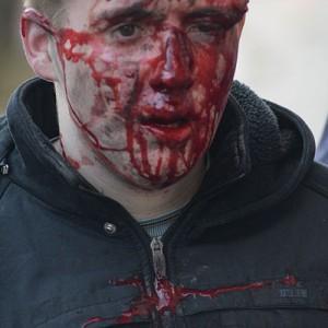 Violence-During-The-Ukraine-Revolution-Photo-by-Mstyslav-Chernov-300x300