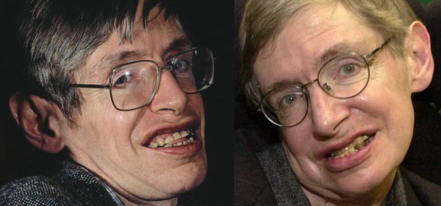 Image result for stephen hawking look alike