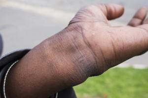 Vusumzi Mdoyogolo wrist