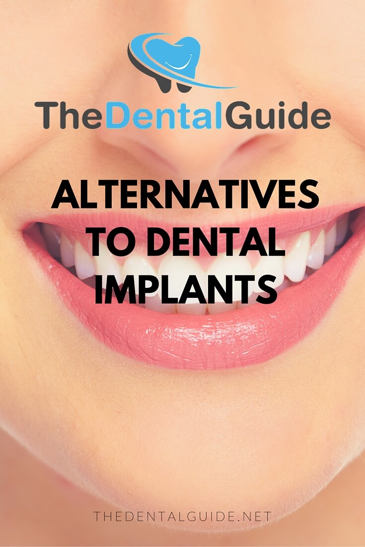 Alternatives To Dental Implants The Dental Guide