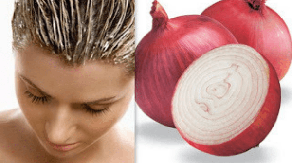 2 Powerful Onion Treatment To Stop Your Hair From Falling