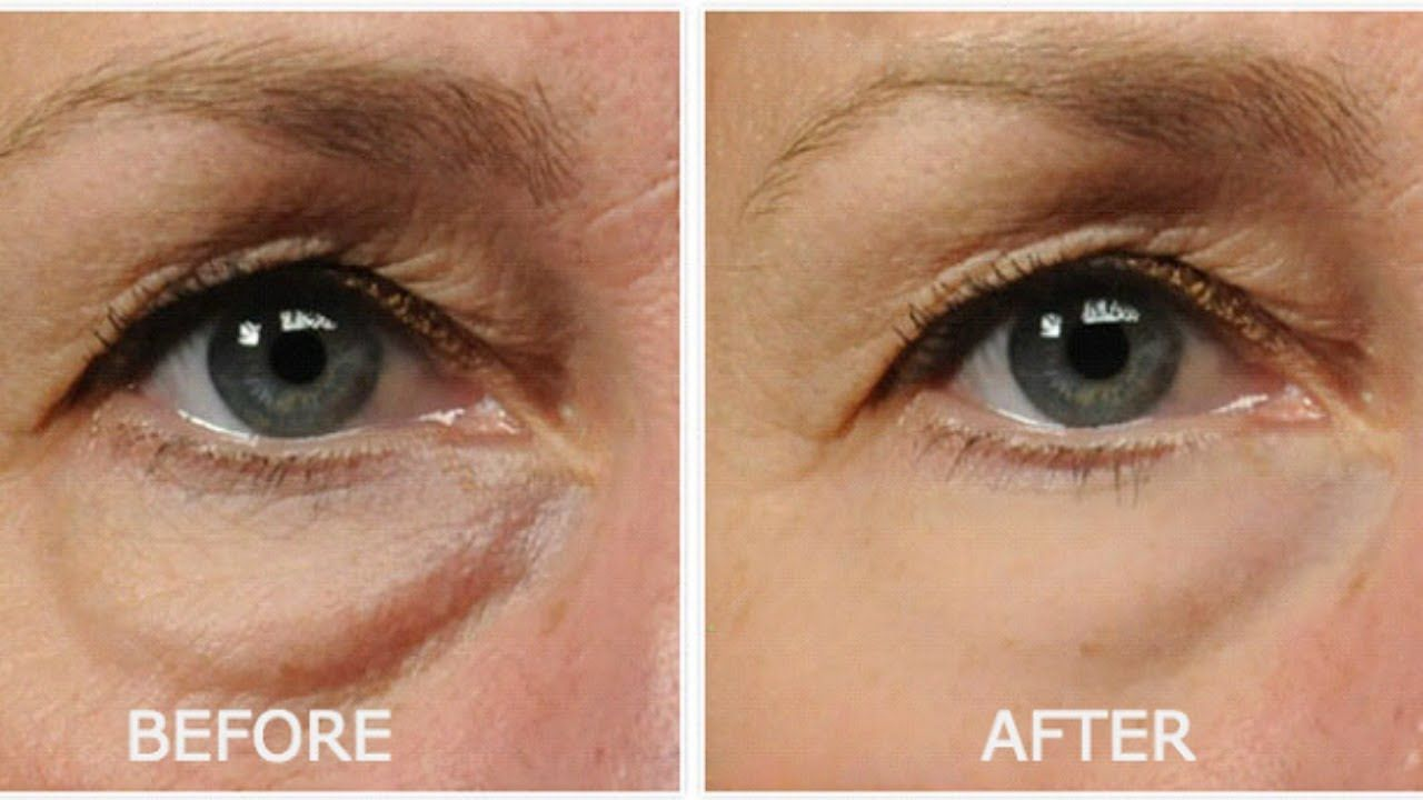 Powerful Home Remedy To Remove Stubborn Eye Bags In Just 3 Days