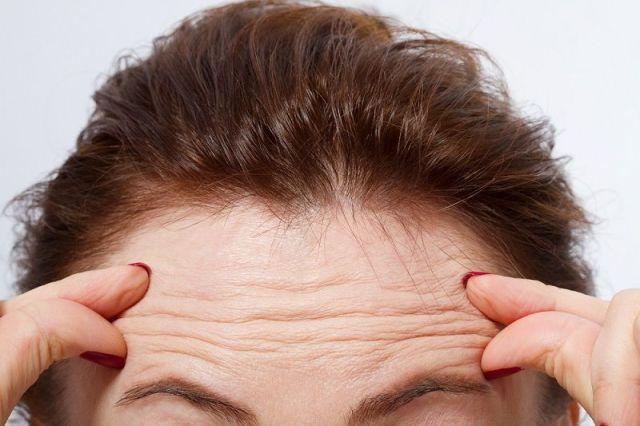 anti wrinkles