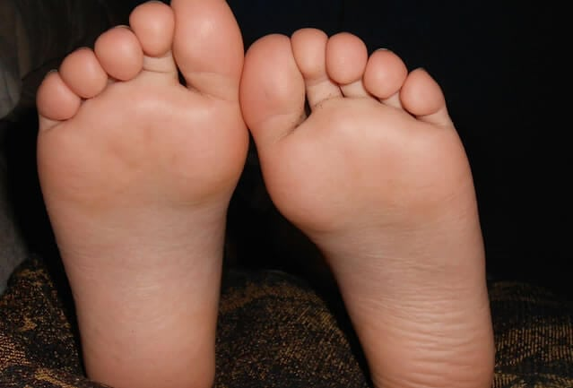 How to get rid of Warts and Verrucas? - The Digital GP, Dr