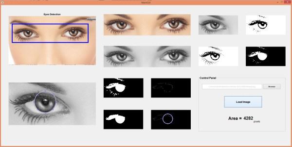 eye ball detection, detect eye ball matlab, eye ball detection in matlab, matlab eye ball detection, eye ball matlab, eye detection