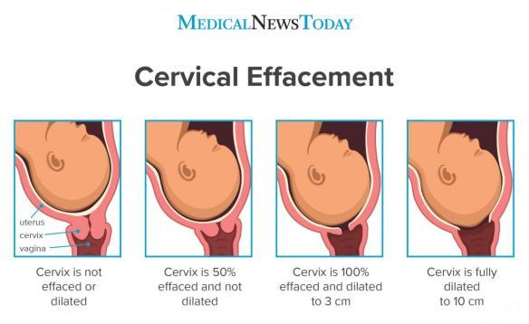 cervix effacement
