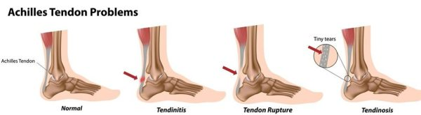 types of achilles tendon problems