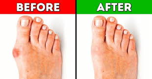 before and after picture of bunions